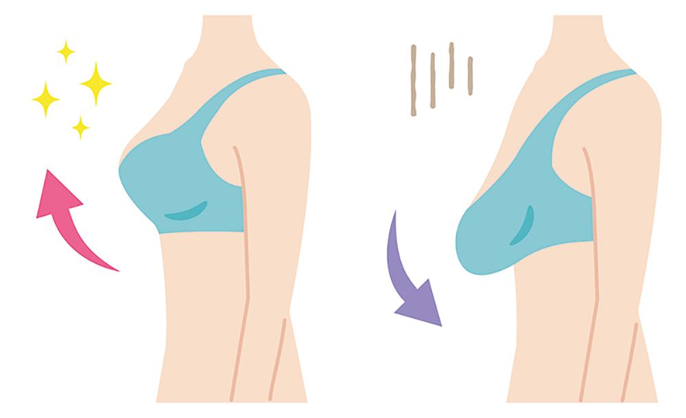 Göğüs Sarkması Neden Olur? Nasıl Önlenir?