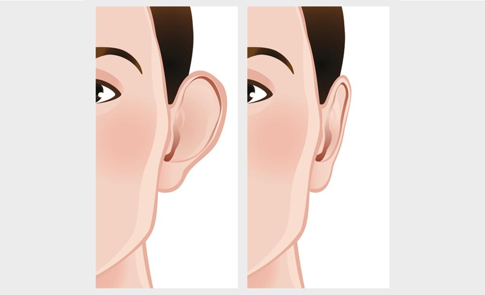 Kepçe Kulak Estetiği