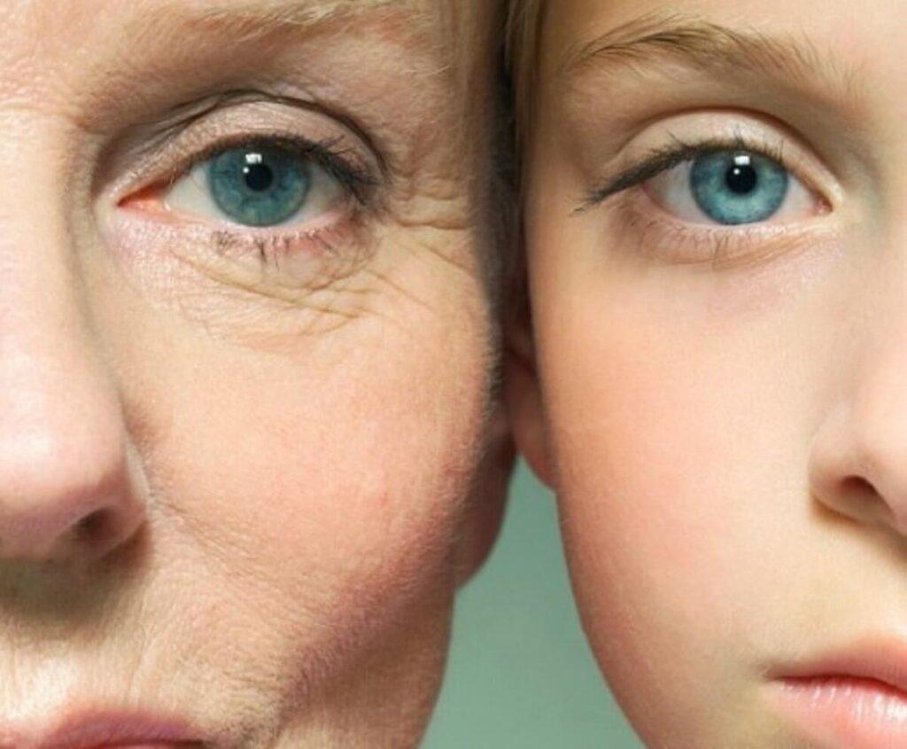 Estetik Ameliyatında Yaş Sınırı Nedir?