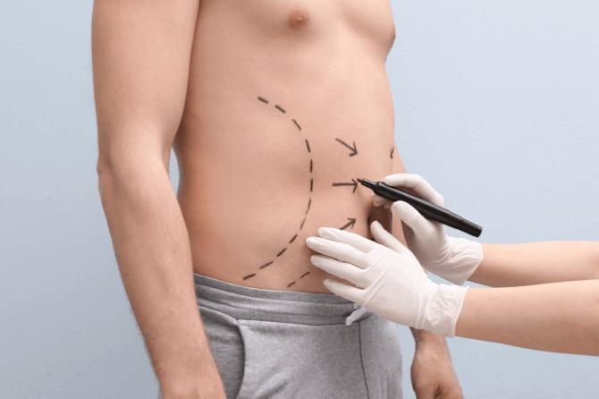 Liposuction sonrası